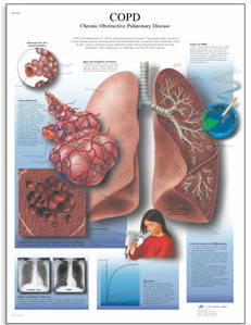 [3B]폐질환차트 COPD차트 VR1329UU(비코팅) COPD Chart- Chronic Obstructive Pulmonary Disease/50 x 67 cm