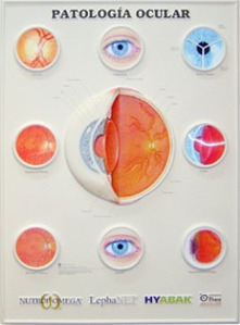 3D해부도(벽걸이)/ 9695RL /안과챠트-수정체/(DISORDERS OF THE EYE)-LENTICULAR CHART / 54cm ⅹ 74cm