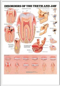 3D해부도(벽걸이)/ 9866M/치과챠트/( DISORDERS OF THE TEETH AND JAW )/47cm ⅹ 65cm